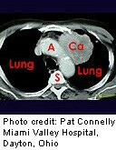 More Evidence Backs Routine CT Scans for Early Lung Cancer Detection
