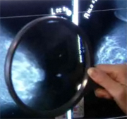 Preliminary Studies Target Advanced Breast Cancers