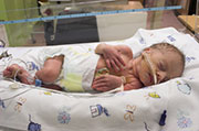 Certain Genes in Babies May Up Preterm Birth Risk