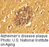 Researchers Pinpoint Possible Protein Culprit Behind Alzheimer's