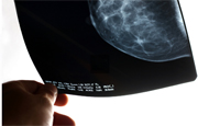 Many Breast Cancer Patients Still Opt for Mastectomy Over Lump Removal